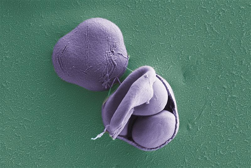 [i]Saccharomyces paradoxus[/i]