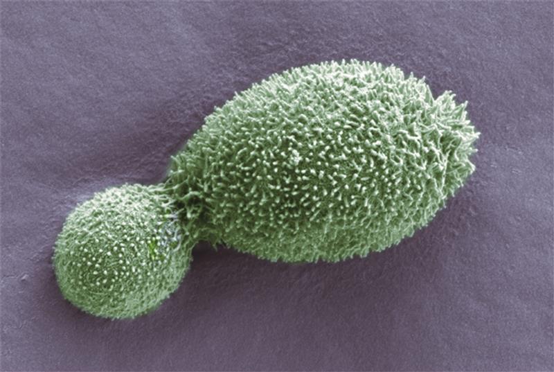 [i]Cryptococcus shivajii[/i]