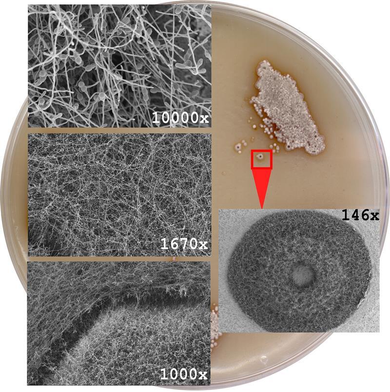 [i]Microbispora corallina[/i] colony