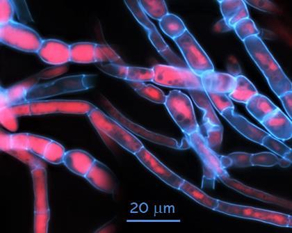 Digesting mycoprotein